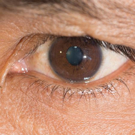 close up of the traumatic cyclodialysis during eye examination.