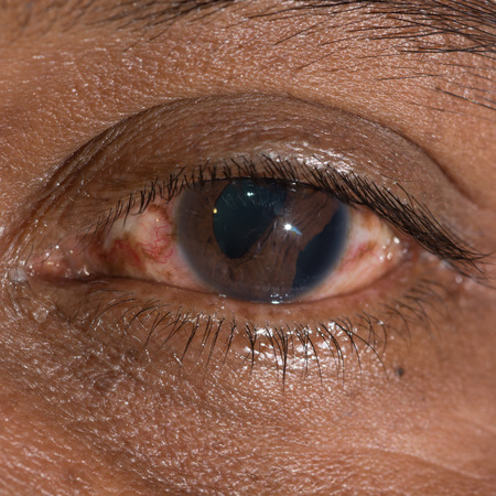 ocular diseases: close up of the traumatic cyclodialysis during eye examination.