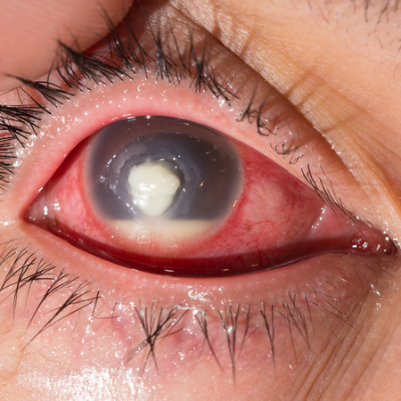 Close up of the severe infected corneal ulcer with hypopyon during eye examination.