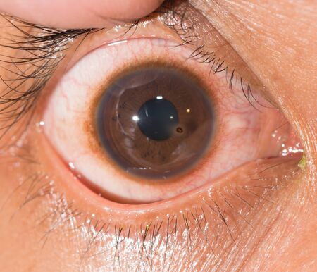 foreign bodies: Close up of the metallic corneal foreign body during eye examination. Stock Photo
