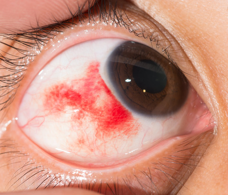 impair: Close up of the sub conjunctival heamorrhage during eye examination.