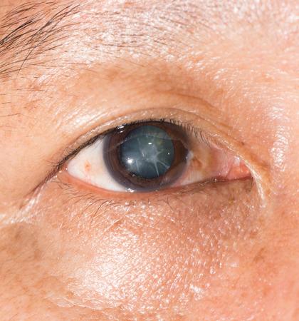 Cerca de la catarata cortical durante el examen de los ojos. Foto de archivo - 42800161