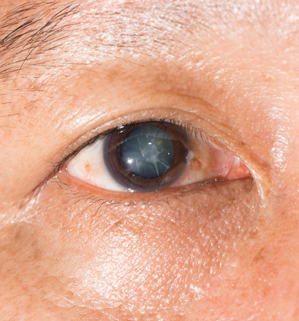 Close up of the cortical cataract during eye examination. 版權商用圖片