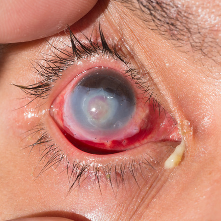 suture: Close up of the suture amnion membrane on cornea during eye examination.