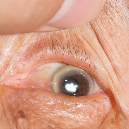 margen: Cerca de la peque�a picadura de hormigas en el borde del p�rpado durante el examen de los ojos.