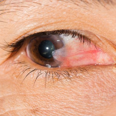 Close up del pterigión durante el examen de los ojos. Foto de archivo - 42800214