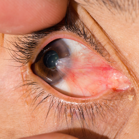 impair: Close up of the pterygium during eye examination.