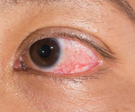 impair: Close up of the episcleritis during eye examination.