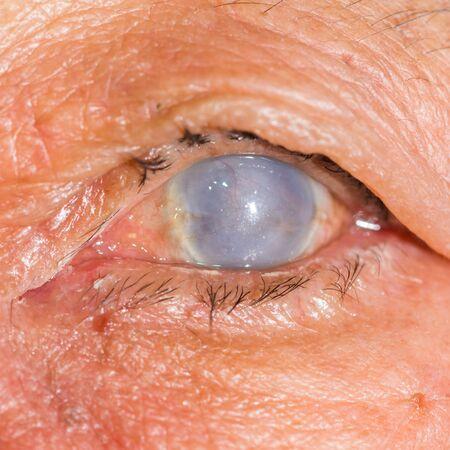 opacity: Close up of the total opacity cornea during eye examination. Stock Photo
