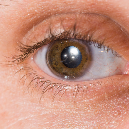 ocular: Close up of the intra ocular lens during eye examination.