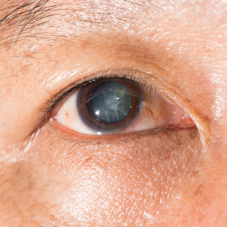 Close up of the cortical cataract during eye examination. Stock Photo