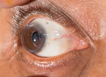 penetrating: Close up of the repaired cornel penetrating wound during eye examination.
