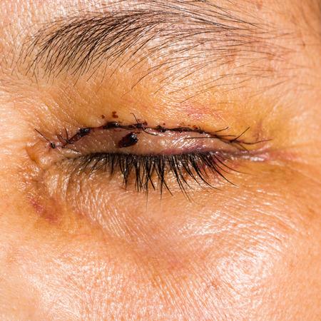 impair: Close up of the post blepharoplasty during eye examination.