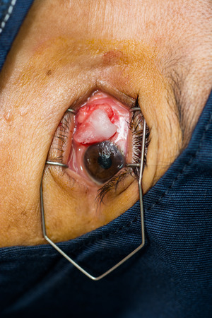 impair: Close up of the intra operation for pterygium .