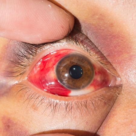 안과 검사 중 안와 주위 반상 가까이에.