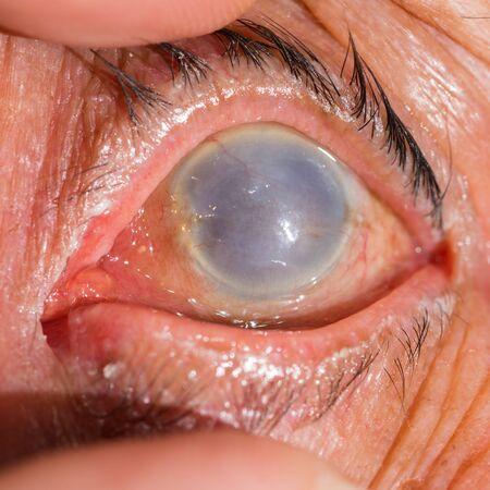 cornea: Close up of the total opacity cornea during eye examination. Stock Photo