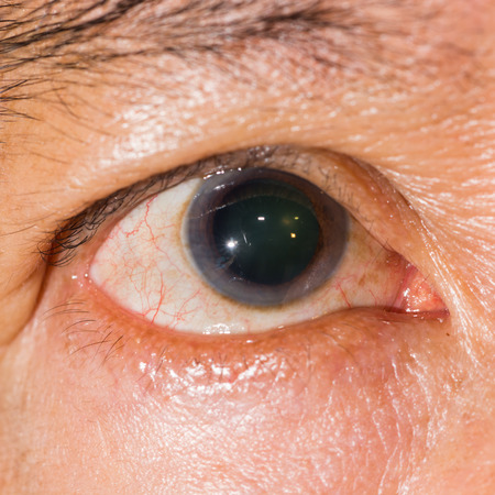 impair: Close up of the dilated pupil eye during eye examination.