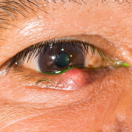 Close up of the stye during eye examination. Stock Photo