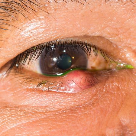impair: Close up of the stye during eye examination. Stock Photo