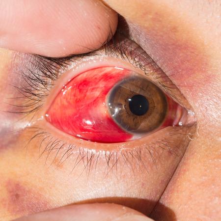 impair: Close up of the periorbital ecchymosis during eye examination.