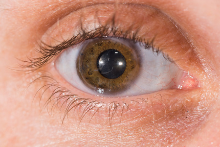 ocular diseases: Close up of the intra ocular lens during eye examination.