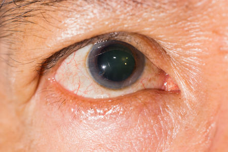 dilate: Close up of the dilated pupil eye during eye examination.