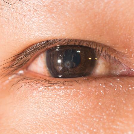 retained: Cerca de la met�lica cuerpo extra�o corneal retenido durante el examen de los ojos. Foto de archivo