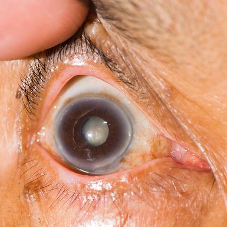 impair: Close up of the cataract during eye examination.