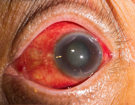 acute: close up of the acute glaucoma during eye examination.