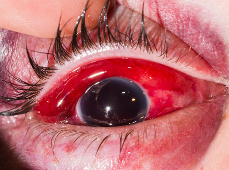 eye ball: close up of the eight ball from blunt injury during eye examination.