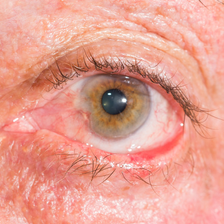 impair: close up of the cicatricial ectropion during eye examination.