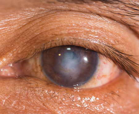 impair: close up of the corneal scar during eye examination. Stock Photo