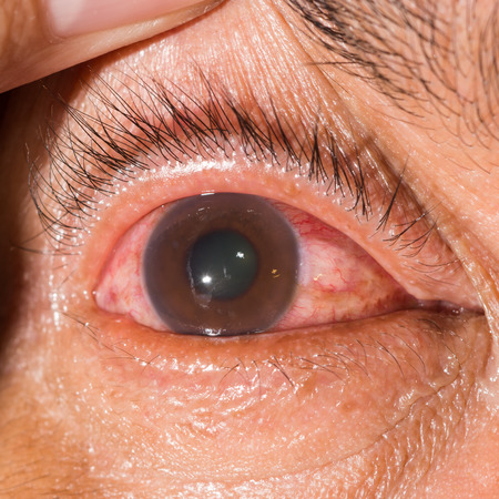glaucoma: close up of the neovascular glaucoma during eye examination.