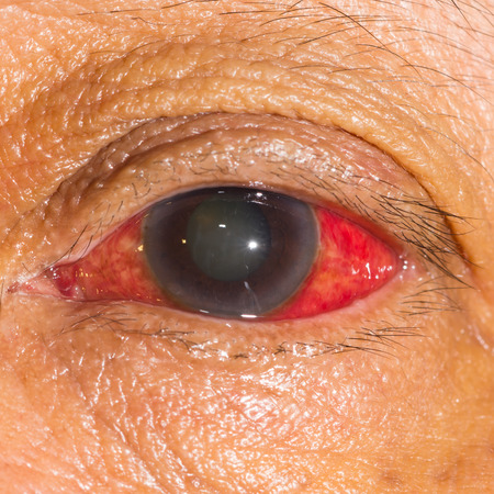 impair: close up of the acute glaucoma during eye examination.