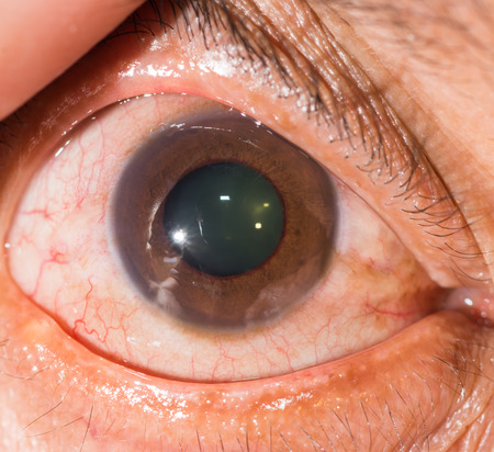 close up of the neovascular glaucoma during eye examination.