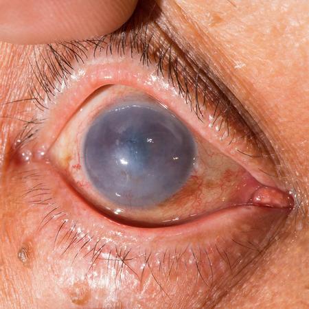 impair: close up of the pseudo phakic bullous keratopathy during eye examination.