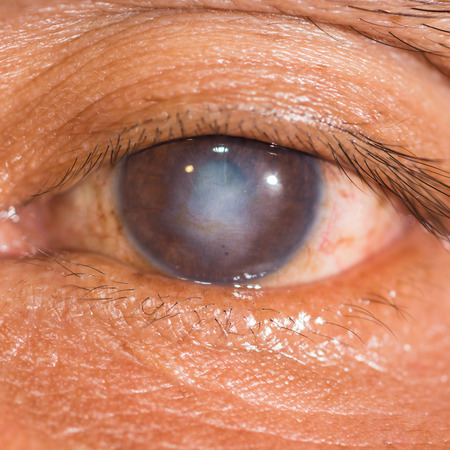 scar: close up of the corneal scar during eye examination. Stock Photo