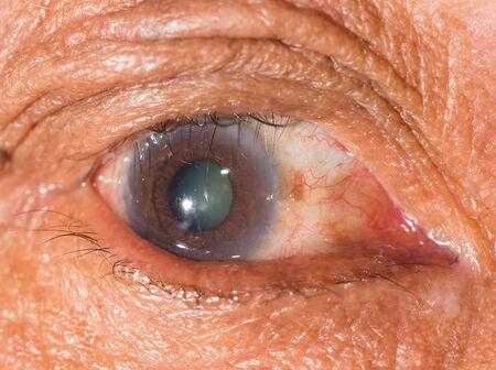 impair: close up of the trichiasis during eye examination.