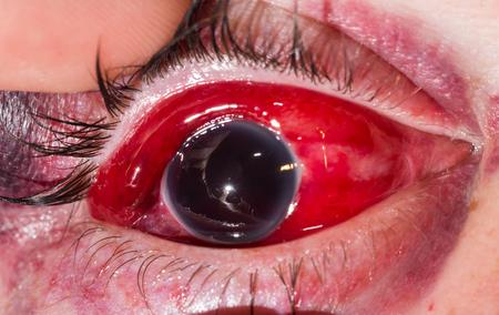 bola ocho: Cierre de la bola ocho de traumatismo cerrado durante el examen de los ojos. Foto de archivo