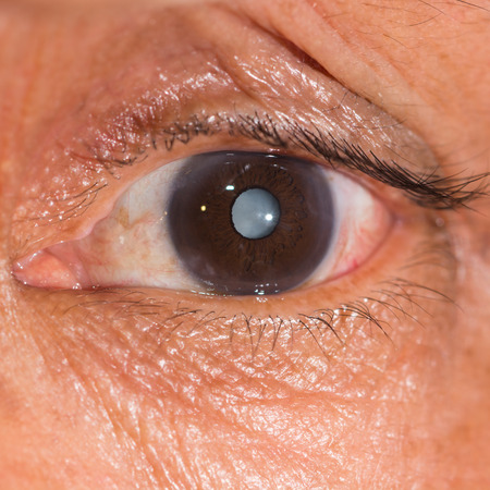 senile: close up of the senile cataract during eye examination.