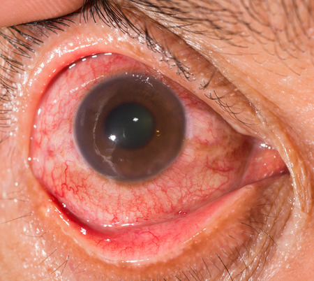 impair: close up of the neovascular glaucoma during eye examination.