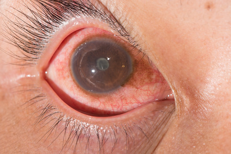 anterior: close up of the anterior uveitis with posterior synechia during eye examination.