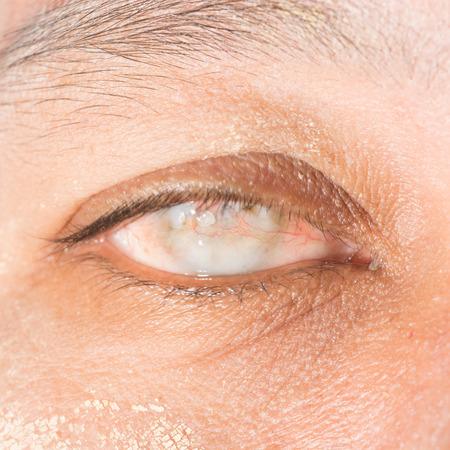 cornea: close up of the total opacity right cornea during eye examination.