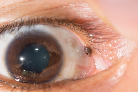 impair: close up of the anevi at upper canaliculus during eye examination.