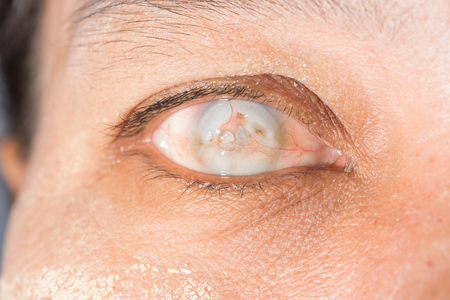 impair: close up of the total opacity right cornea during eye examination.