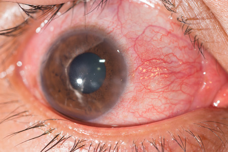 close up of the keratoconjungtivitis during eye examination.