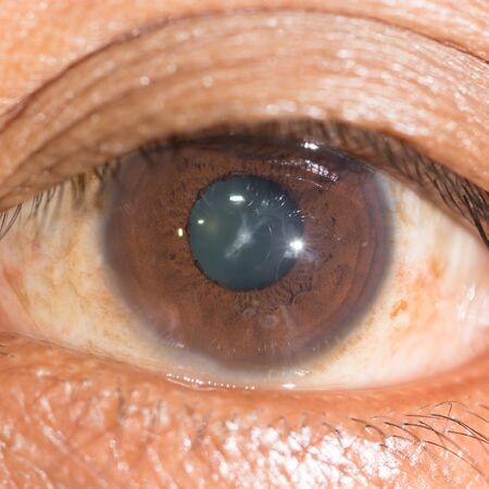 anterior: close up of the anterior sutural cataract during eye examination.