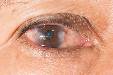 impair: close up of the advance pterygium during eye examination.