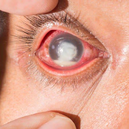 fungal: close up of the severe fungal corneal ulcer during eye examination. Stock Photo