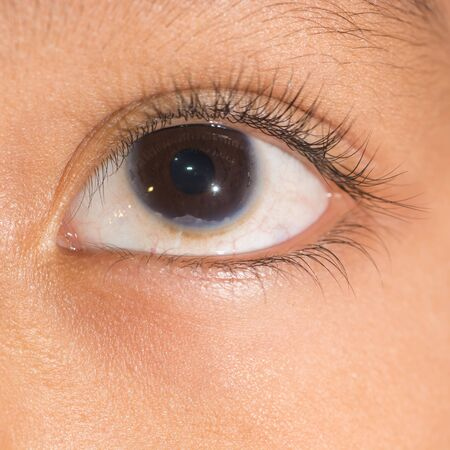 atrophy: close up of the congenital corneal problem during eye examination. Stock Photo